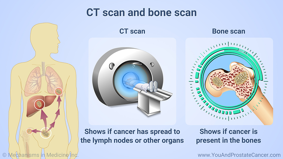 CT scan and bone scan