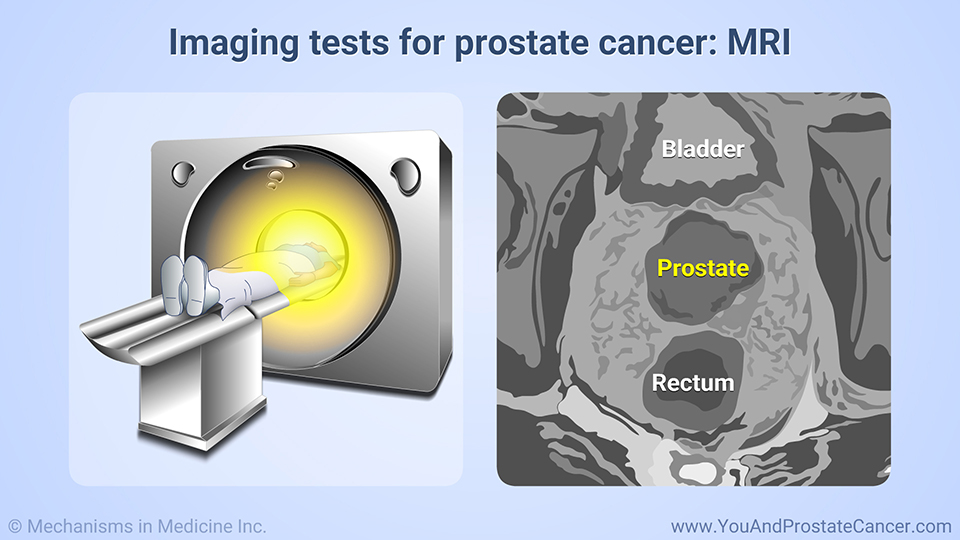 Imaging tests for prostate cancer: MRI