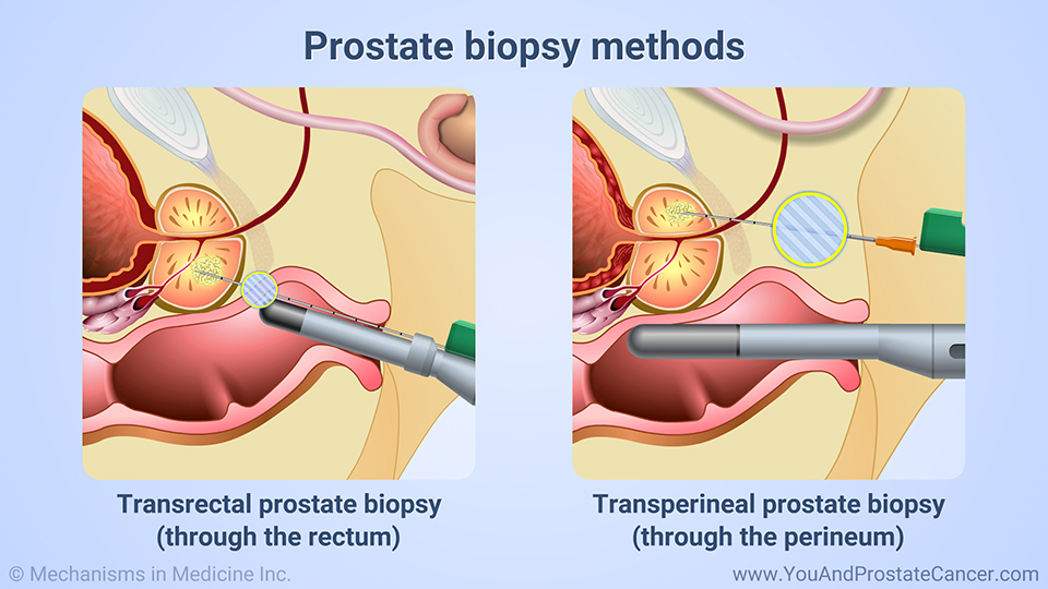 Prostate biopsy methods