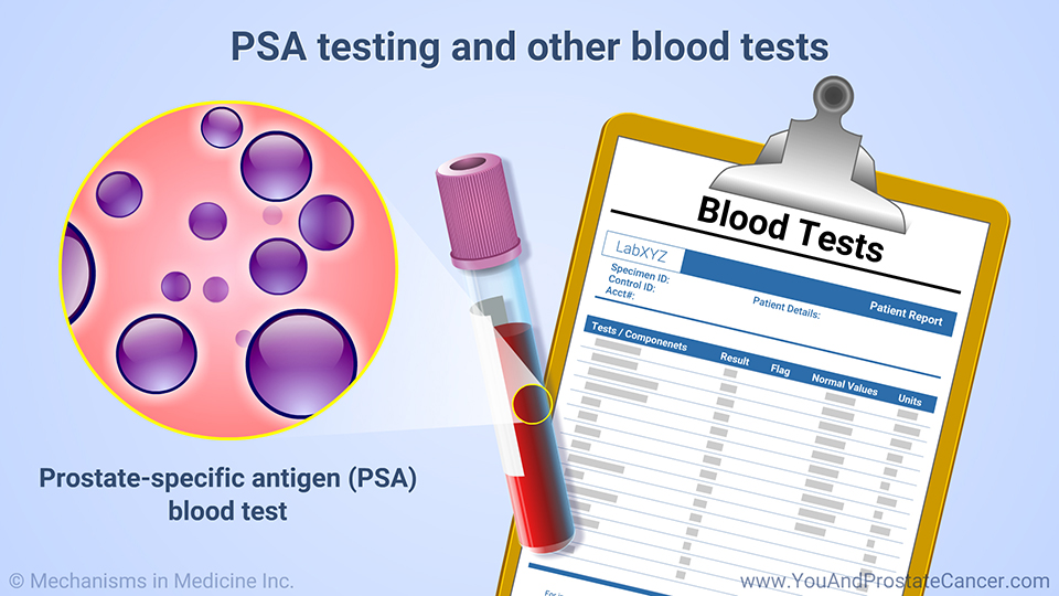 PSA testing and other blood tests