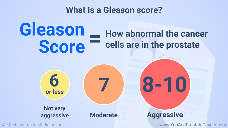 What is a Gleason score?